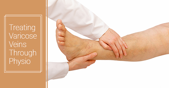 Treating Varicose Veins Through Physio