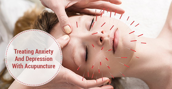 acupuncture and depression research
