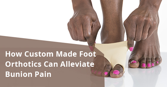 How Custom Made Foot Orthotics Can Alleviate Bunion Pain