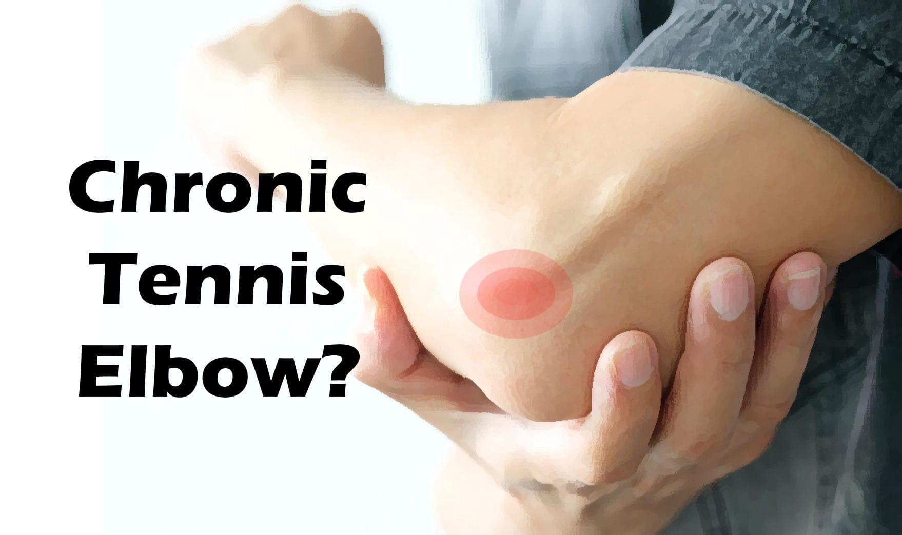 Chronic Tennis Elbow?