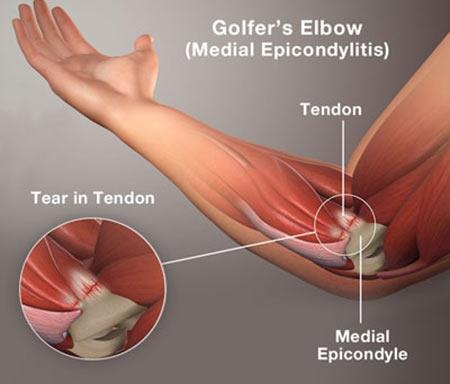 Golfer's Elbow or Medial Epicondylitis Injury
